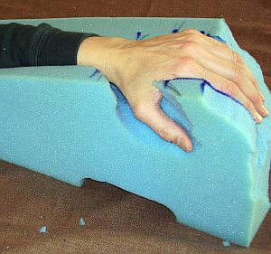 Carving A Wedge To Prevent And Treat Edema Of The Hand